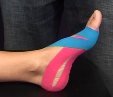 Fuß-Taping - Taping bei Fußproblemen