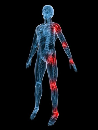 Rheuma: Krankheiten des Bewegungsapparates