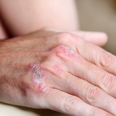 Hautbeschwerden
