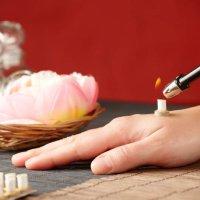 Moxen: Therapie mit Hitze und Beifuß