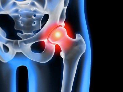 Orthokin bei Gelenkentzündungen