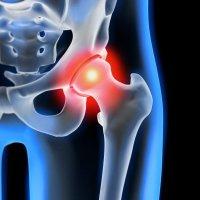 Osteoporose: Abnahme der Knochendichte bei erhöhtem Risiko für Knochenbrüche