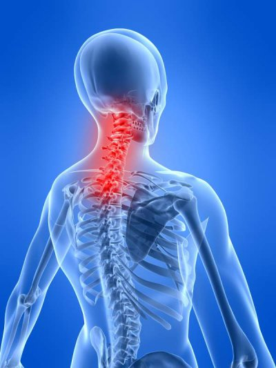 Nackenschmerzen als Symptom
